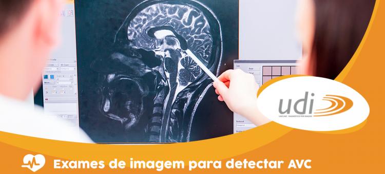 Exames de imagem para detectar AVC